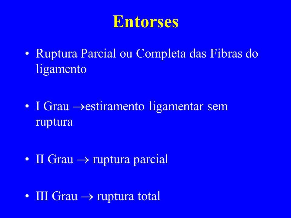 Entorses Ruptura Parcial ou Completa das Fibras do ligamento