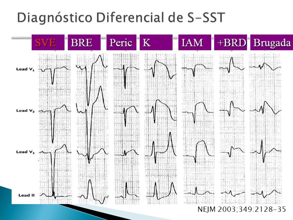 Diagnóstico Diferencial de S-SST