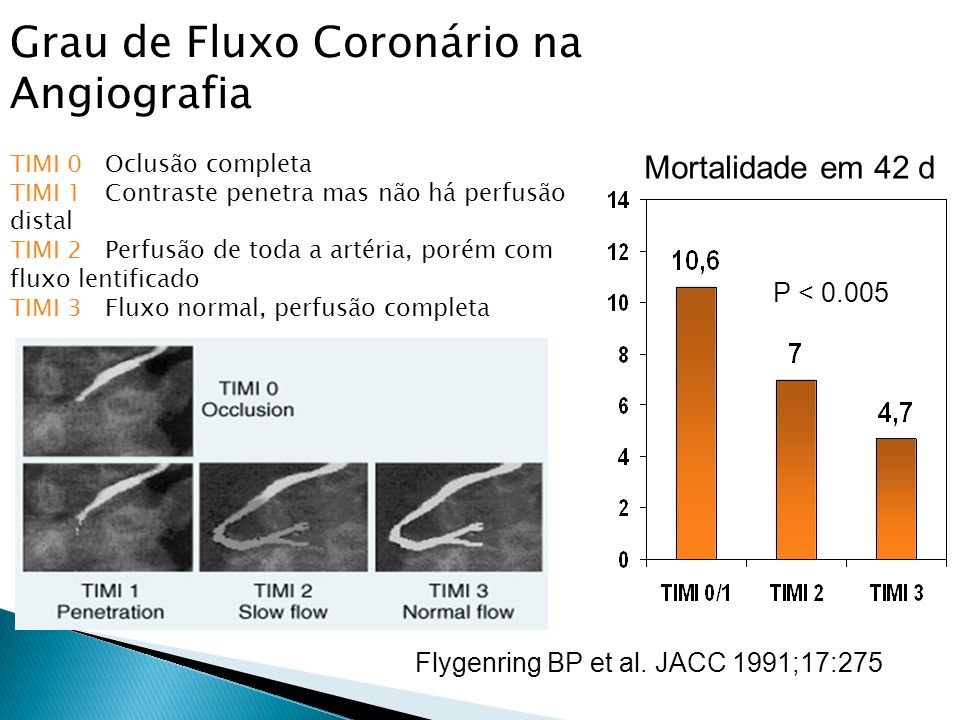Grau de Fluxo Coronário na Angiografia
