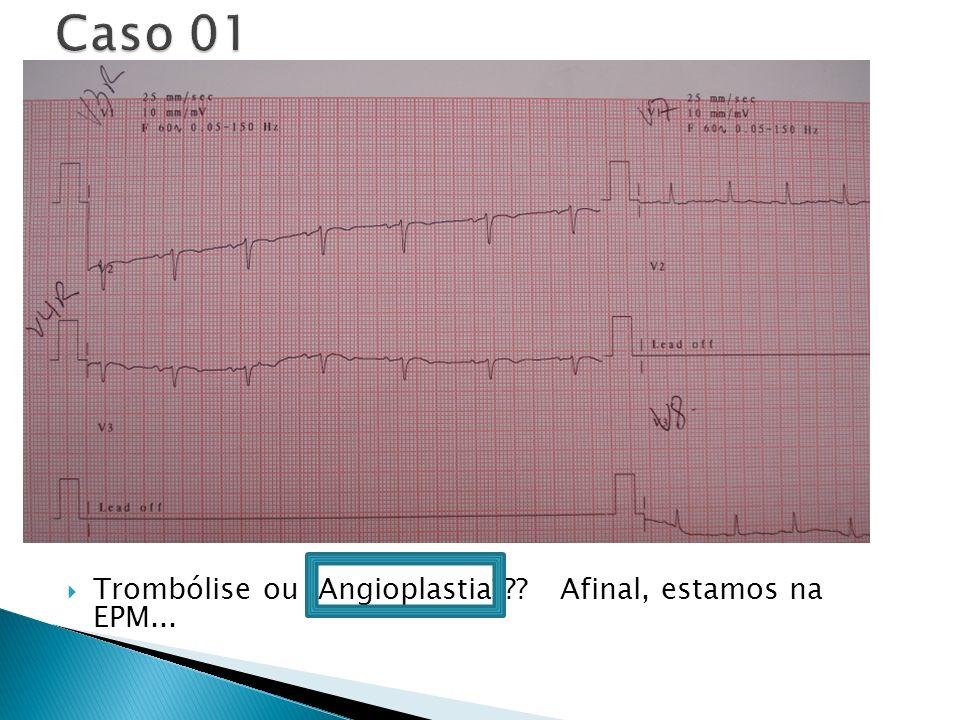 Caso 01 Trombólise ou Angioplastia Afinal, estamos na EPM...