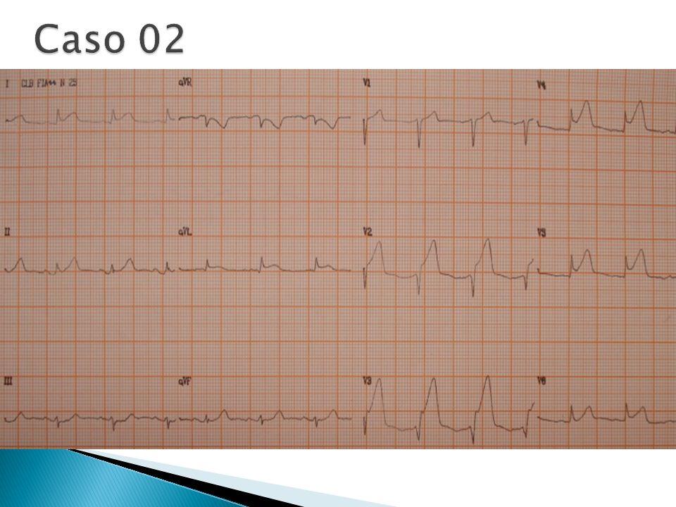 Caso 02 ECG da entrada Trombólise ou Angioplastia