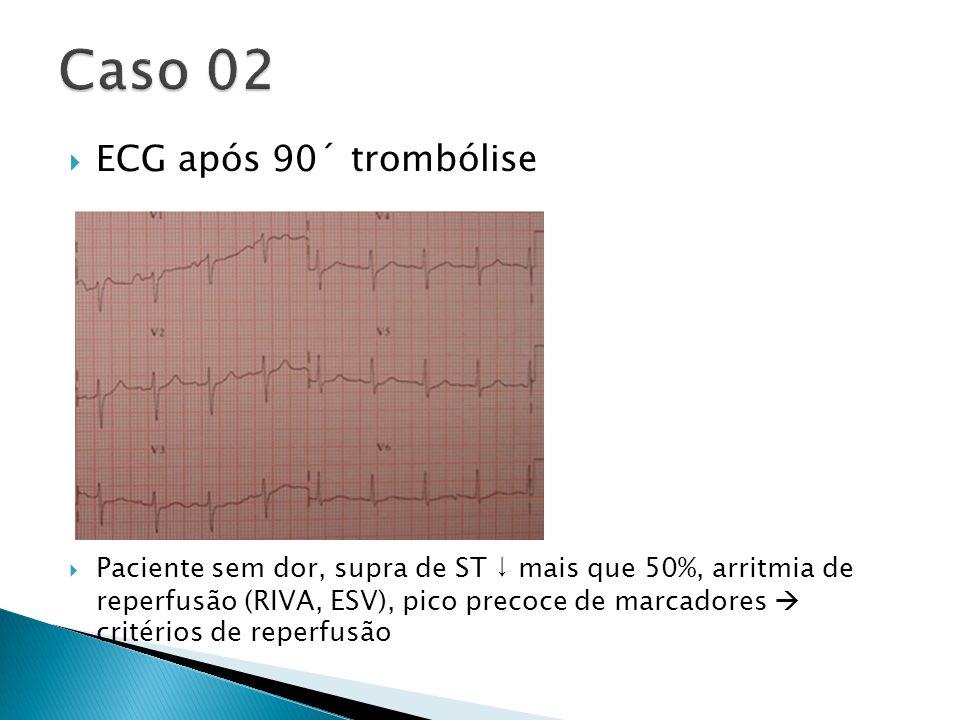 Caso 02 ECG após 90´ trombólise