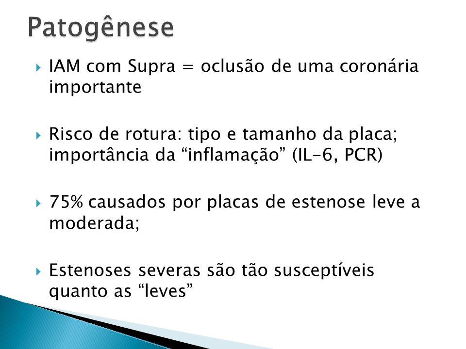 Patogênese IAM com Supra = oclusão de uma coronária importante