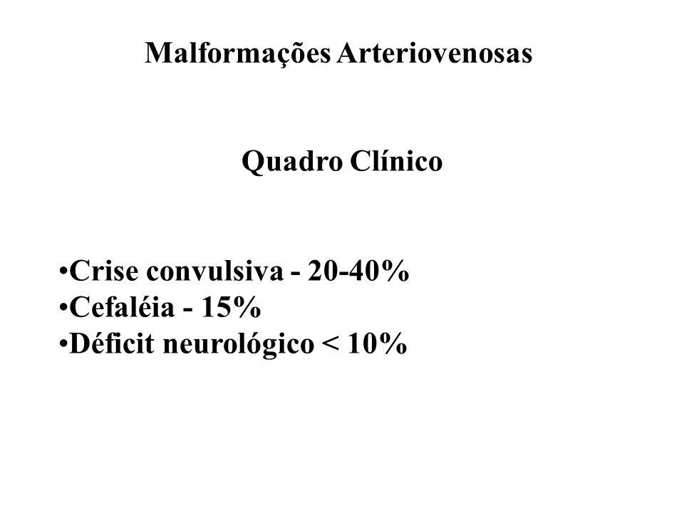 Malformações Arteriovenosas