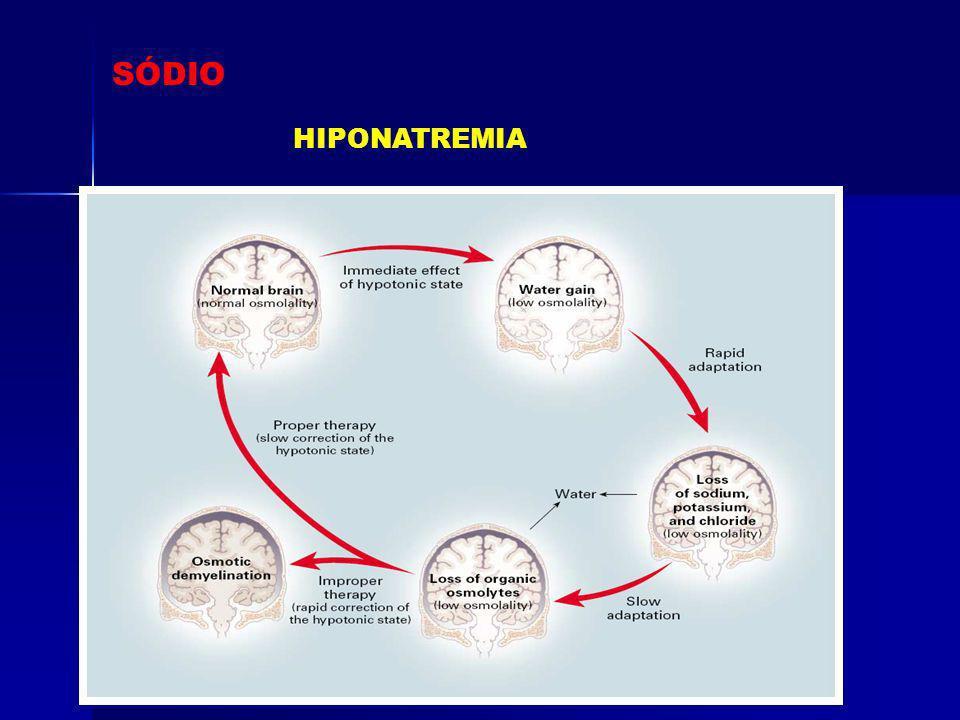 SÓDIO HIPONATREMIA