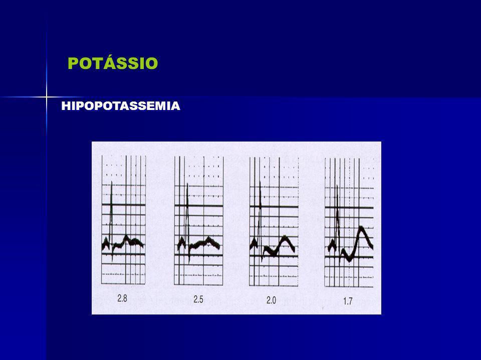 POTÁSSIO HIPOPOTASSEMIA