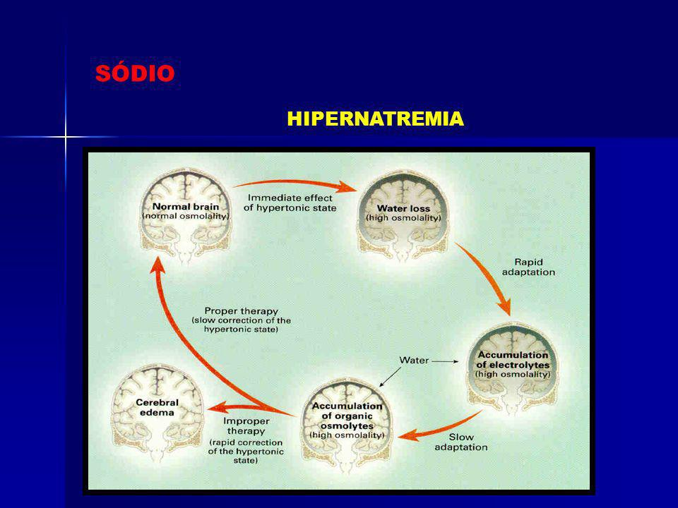 SÓDIO HIPERNATREMIA