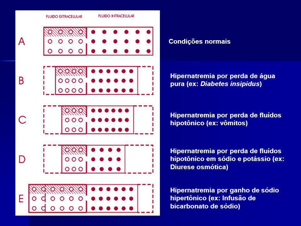 Condições normais Hipernatremia por perda de água pura (ex: Diabetes insipidus) Hipernatremia por perda de fluídos hipotônico (ex: vômitos)