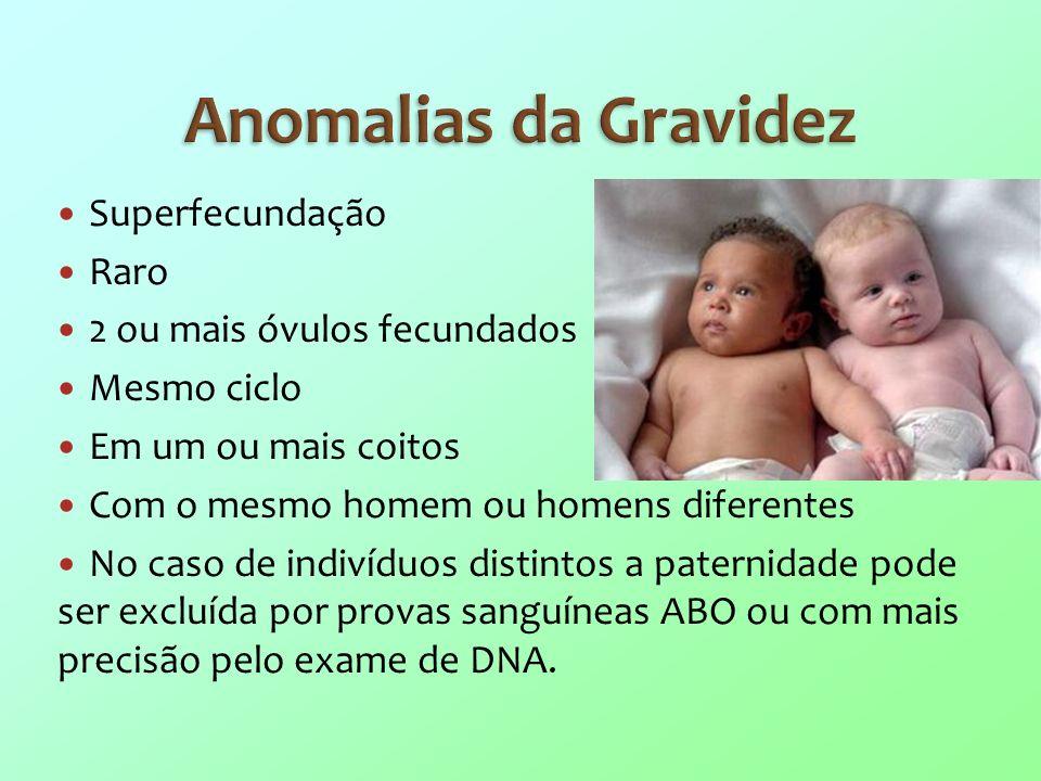 Anomalias da Gravidez Superfecundação Raro 2 ou mais óvulos fecundados