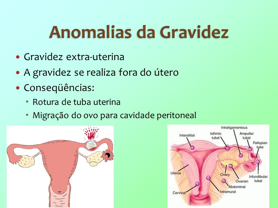 Anomalias da Gravidez Gravidez extra-uterina
