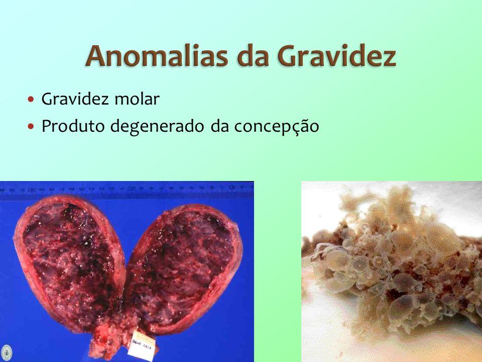Anomalias da Gravidez Gravidez molar Produto degenerado da concepção