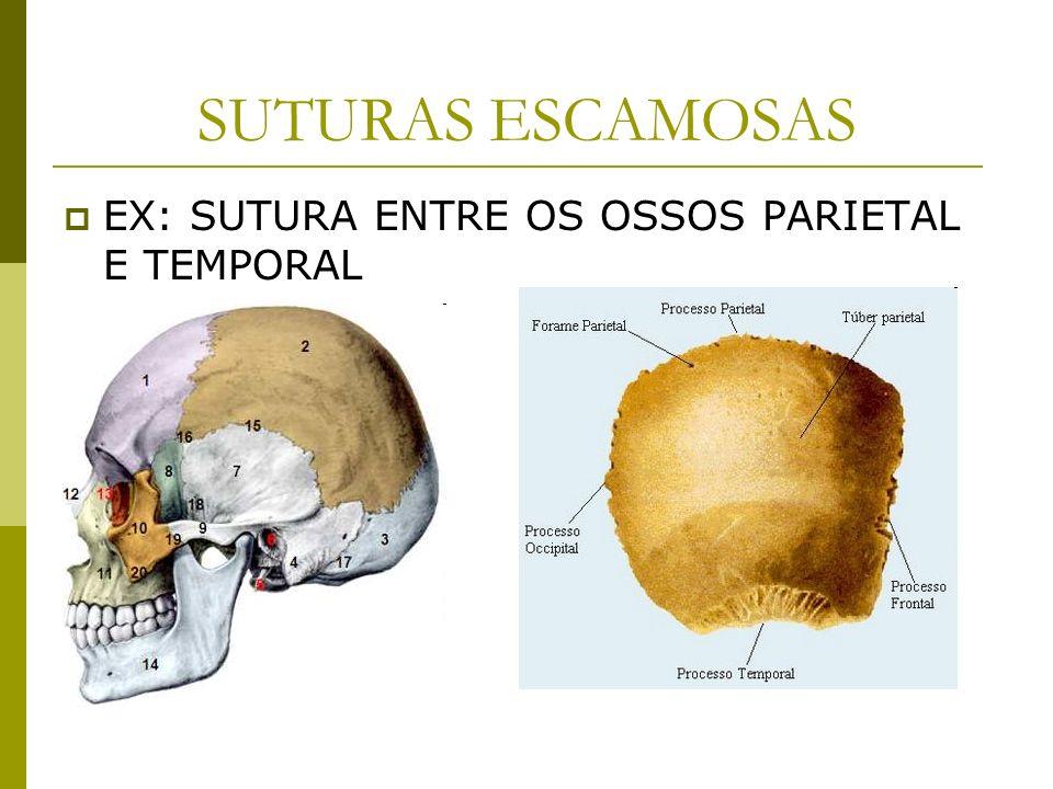SUTURAS ESCAMOSAS EX: SUTURA ENTRE OS OSSOS PARIETAL E TEMPORAL