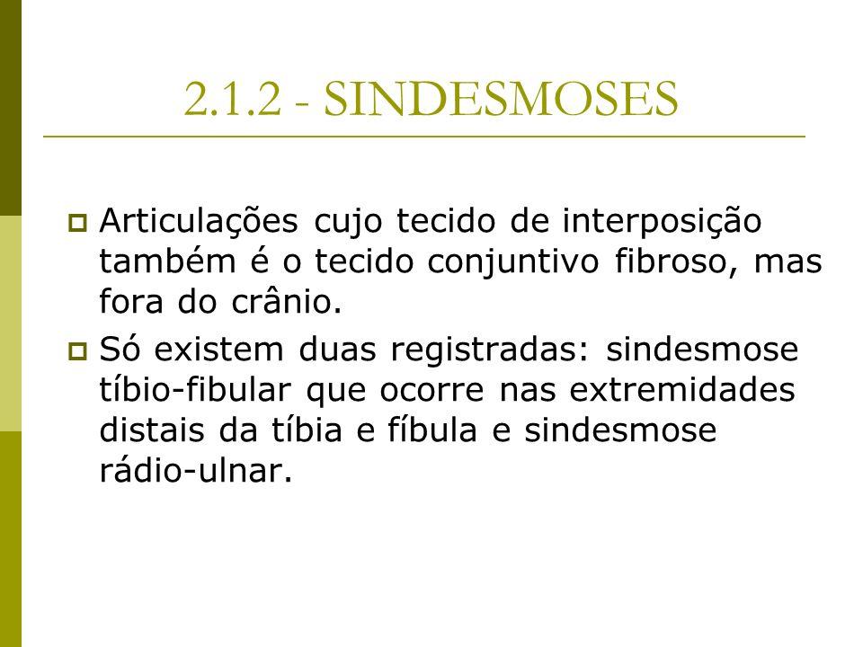 2.1.2 - SINDESMOSESArticulações cujo tecido de interposição também é o tecido conjuntivo fibroso, mas fora do crânio.