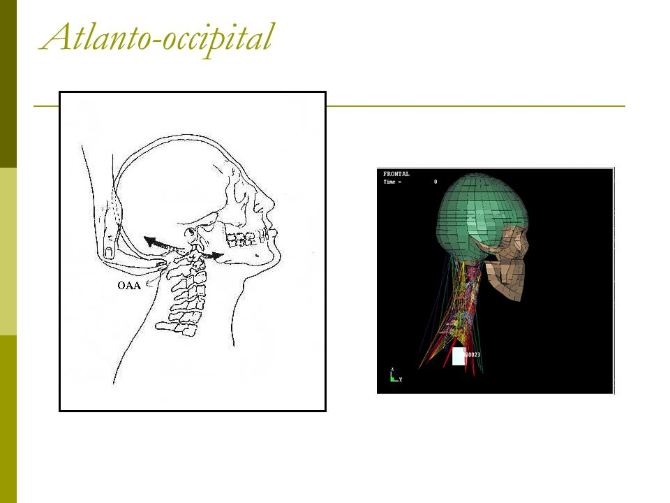 Atlanto-occipital