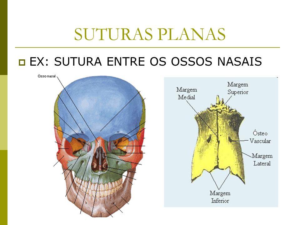 SUTURAS PLANAS EX: SUTURA ENTRE OS OSSOS NASAIS