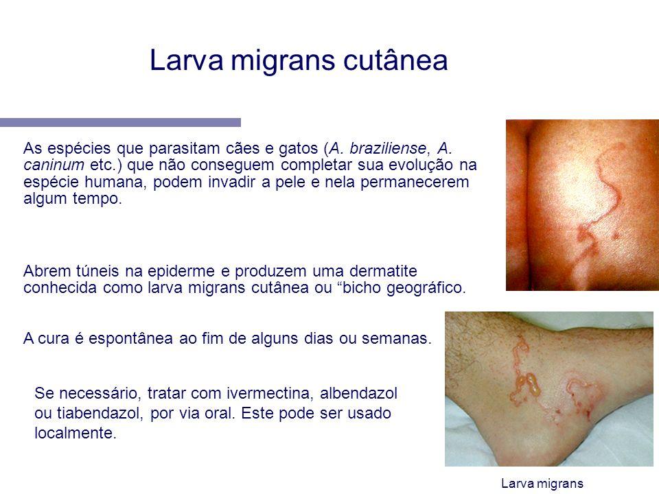 Larva migrans cutânea