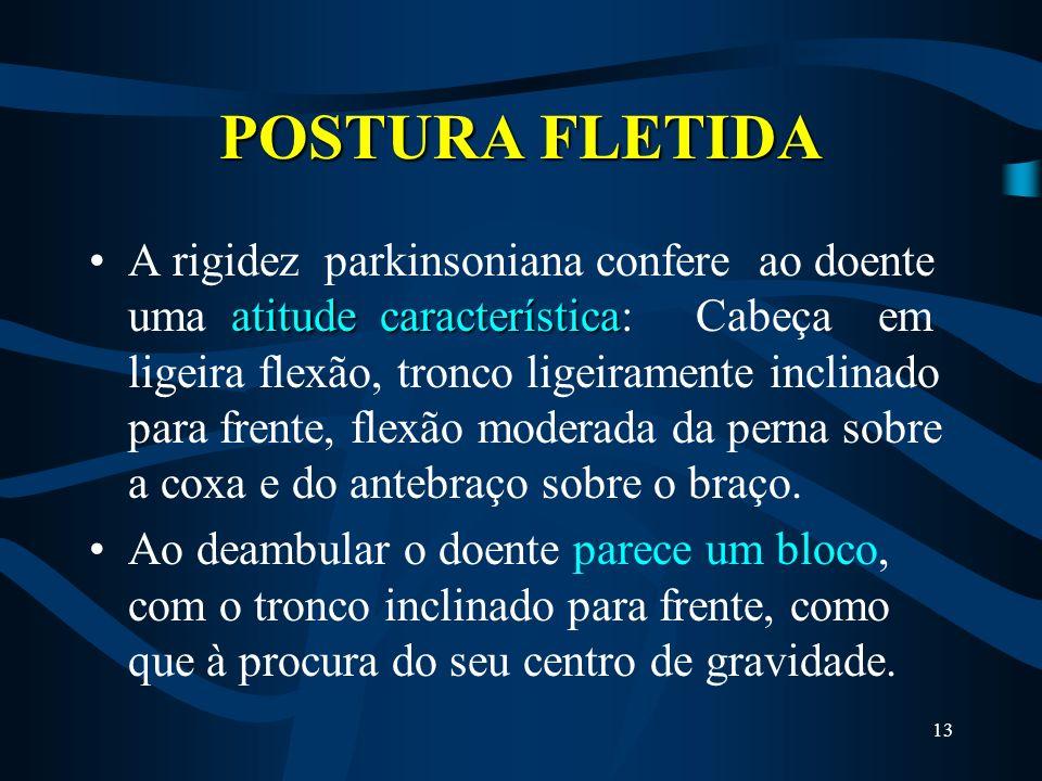 POSTURA FLETIDA