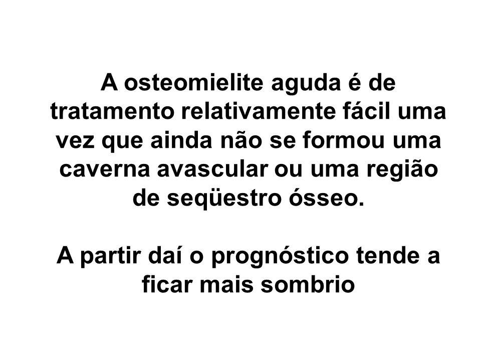 A osteomielite aguda é de tratamento relativamente fácil uma vez que ainda não se formou uma caverna avascular ou uma região de seqüestro ósseo.