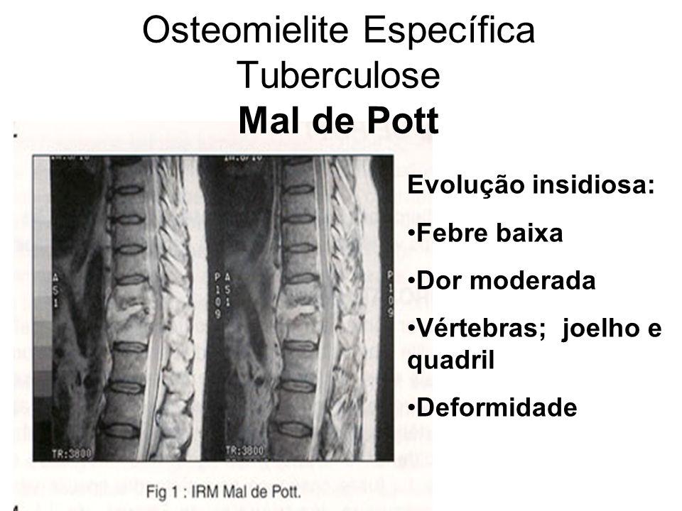 Osteomielite Específica Tuberculose Mal de Pott