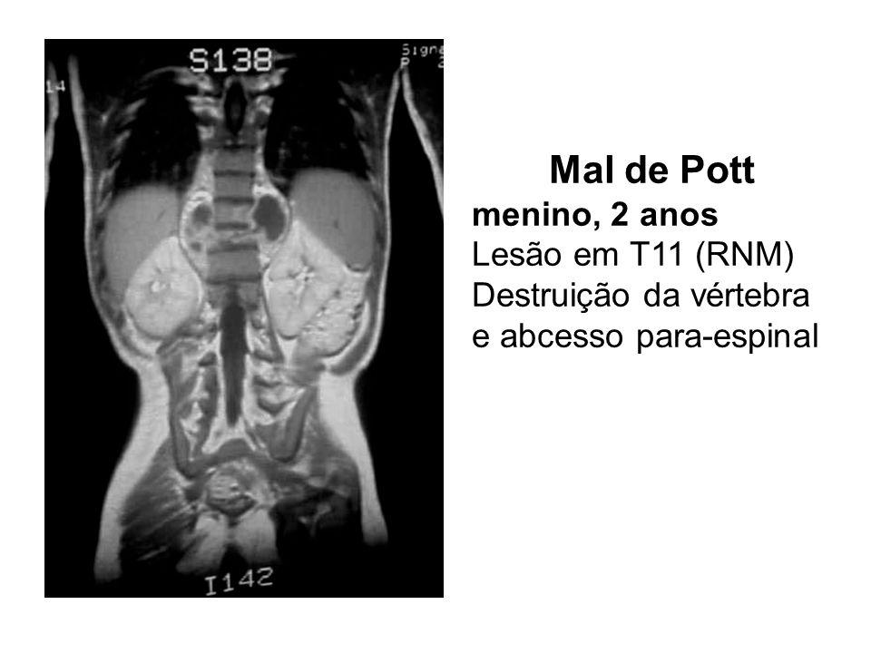 Mal de Pott menino, 2 anos Lesão em T11 (RNM) Destruição da vértebra