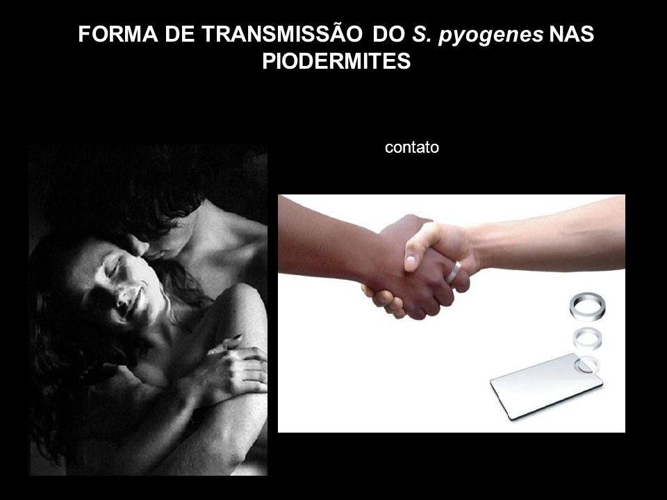 FORMA DE TRANSMISSÃO DO S. pyogenes NAS PIODERMITES