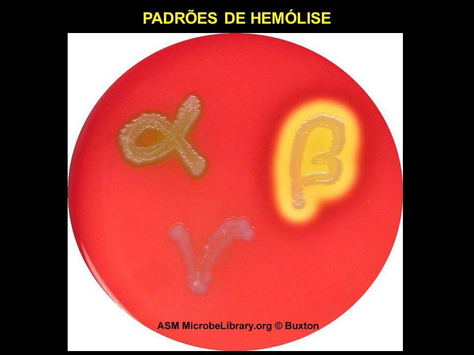 PADRÕES DE HEMÓLISE