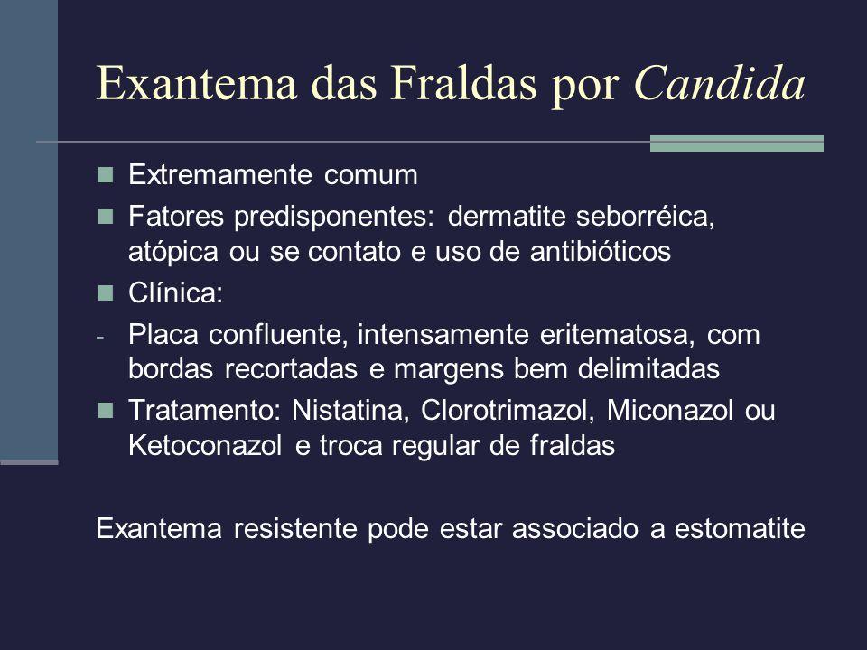 Exantema das Fraldas por Candida