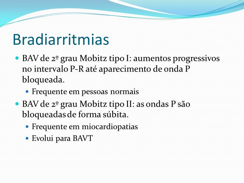 Bradiarritmias BAV de 2º grau Mobitz tipo I: aumentos progressivos no intervalo P-R até aparecimento de onda P bloqueada.