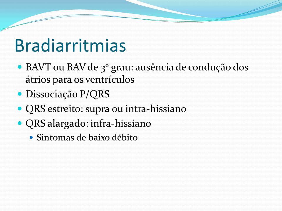 Bradiarritmias BAVT ou BAV de 3º grau: ausência de condução dos átrios para os ventrículos. Dissociação P/QRS.