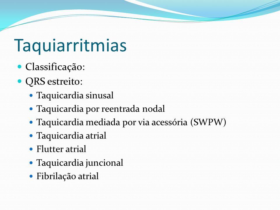 Taquiarritmias Classificação: QRS estreito: Taquicardia sinusal