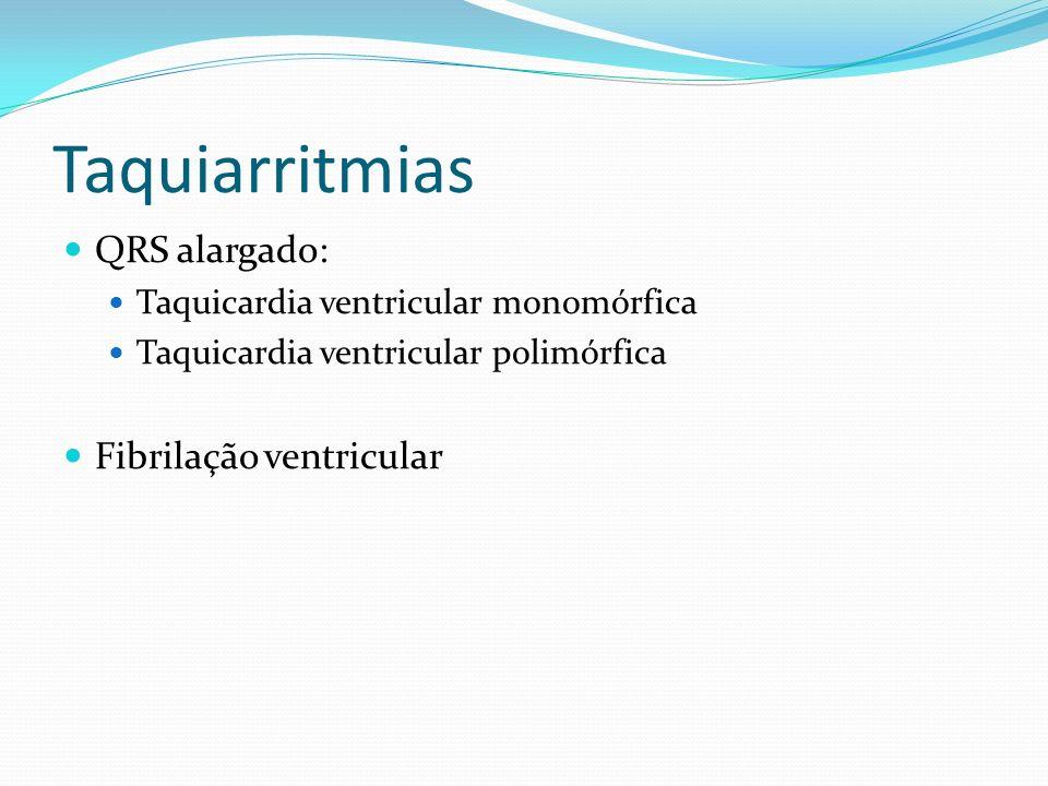 Taquiarritmias QRS alargado: Fibrilação ventricular