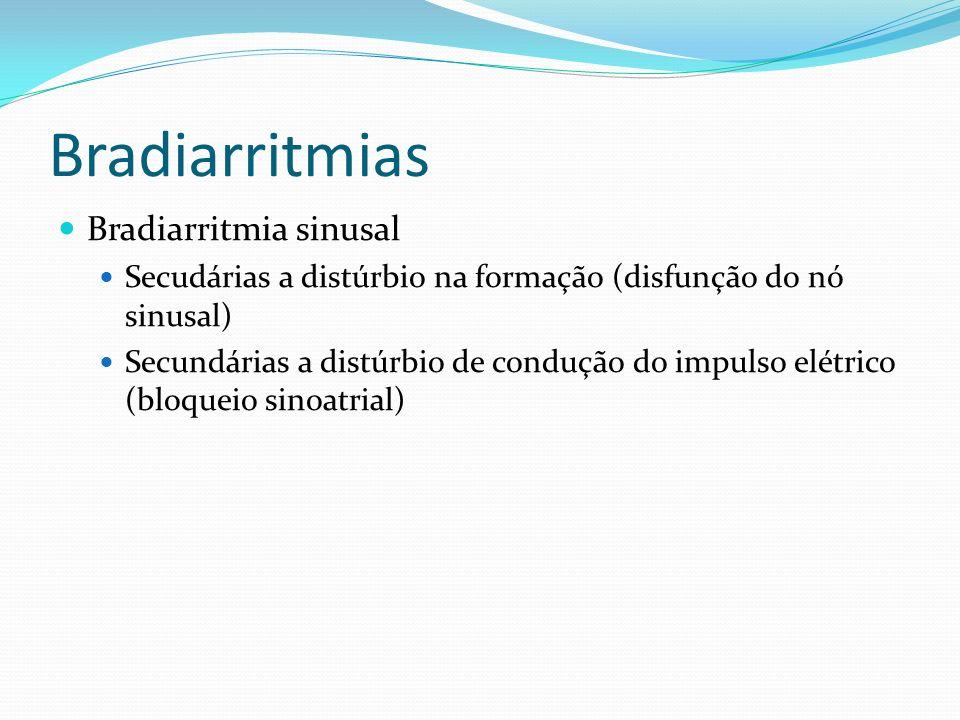 Bradiarritmias Bradiarritmia sinusal