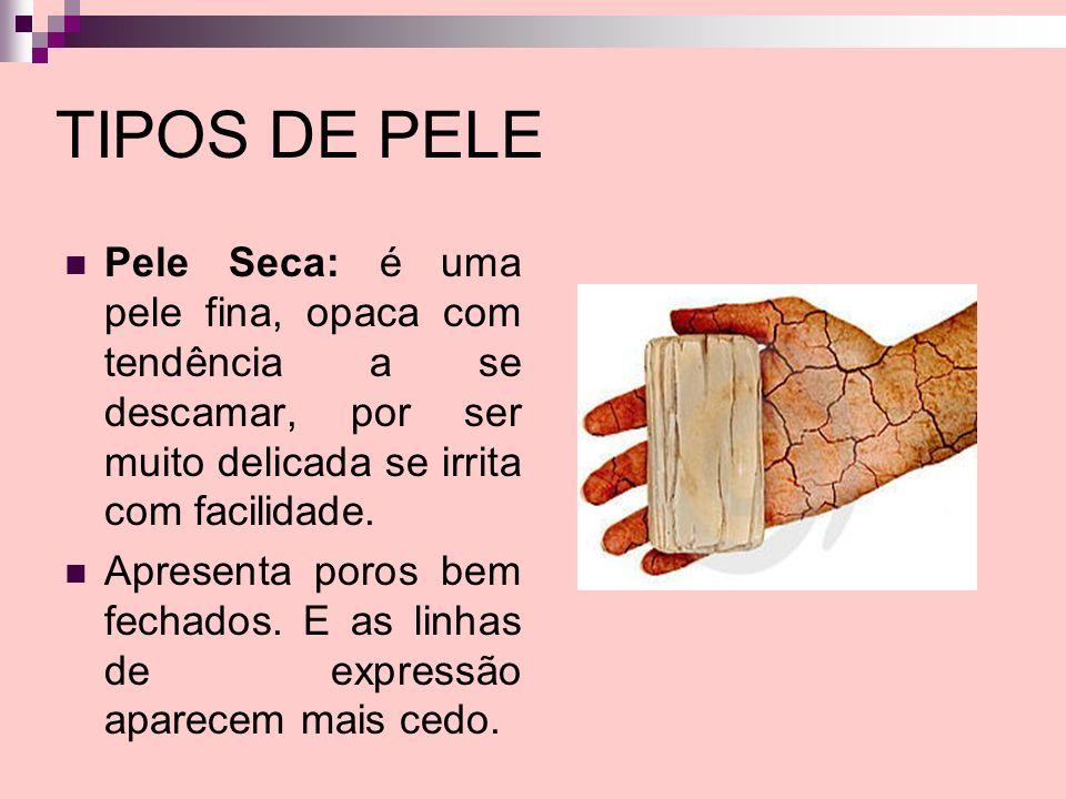 TIPOS DE PELE Pele Seca: é uma pele fina, opaca com tendência a se descamar, por ser muito delicada se irrita com facilidade.
