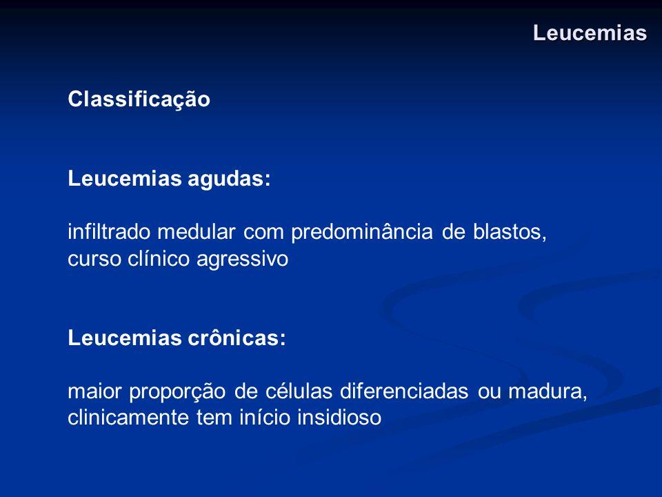 Leucemias Classificação. Leucemias agudas: infiltrado medular com predominância de blastos, curso clínico agressivo.