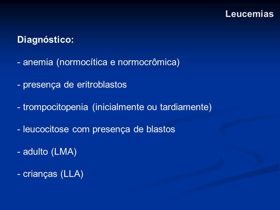 Leucemias Diagnóstico: anemia (normocítica e normocrômica) presença de eritroblastos. trompocitopenia (inicialmente ou tardiamente)