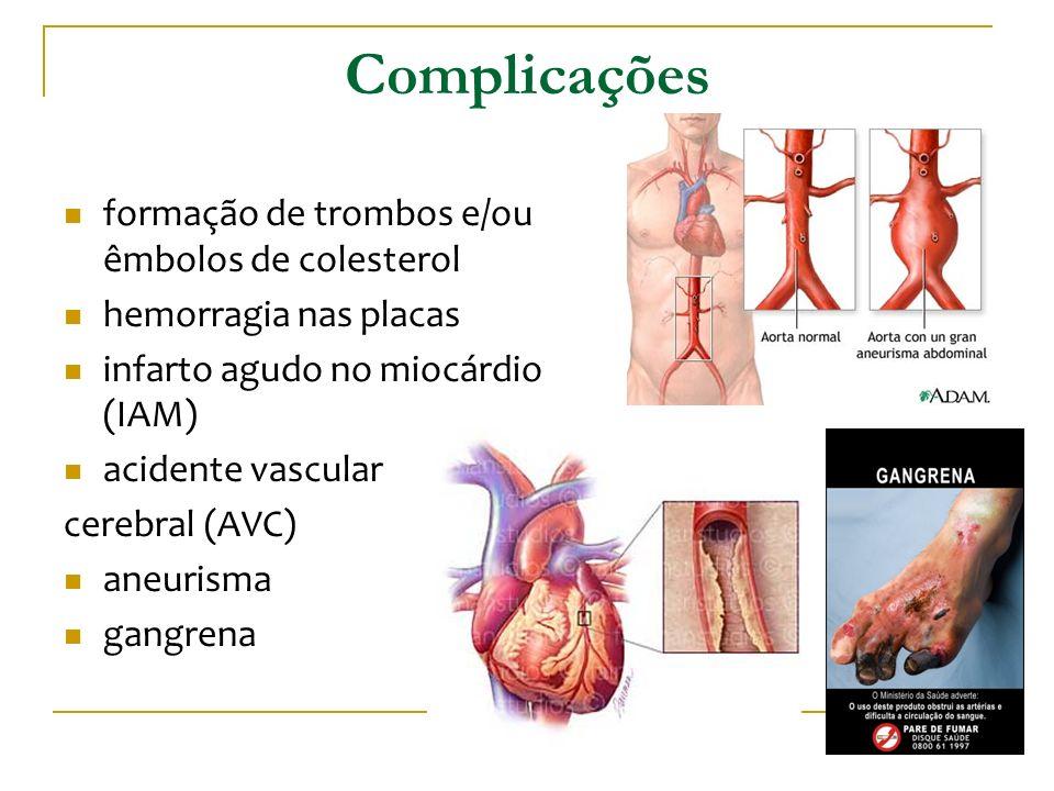 Complicações formação de trombos e/ou êmbolos de colesterol