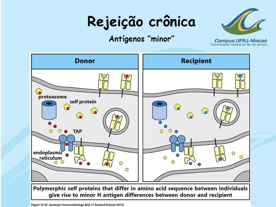 Rejeição crônica Antígenos minor