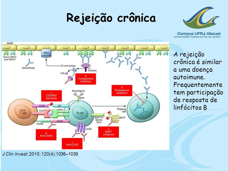 Rejeição crônica A rejeição crônica é similar a uma doença autoimune. Frequentemente tem participação de resposta de linfócitos B.