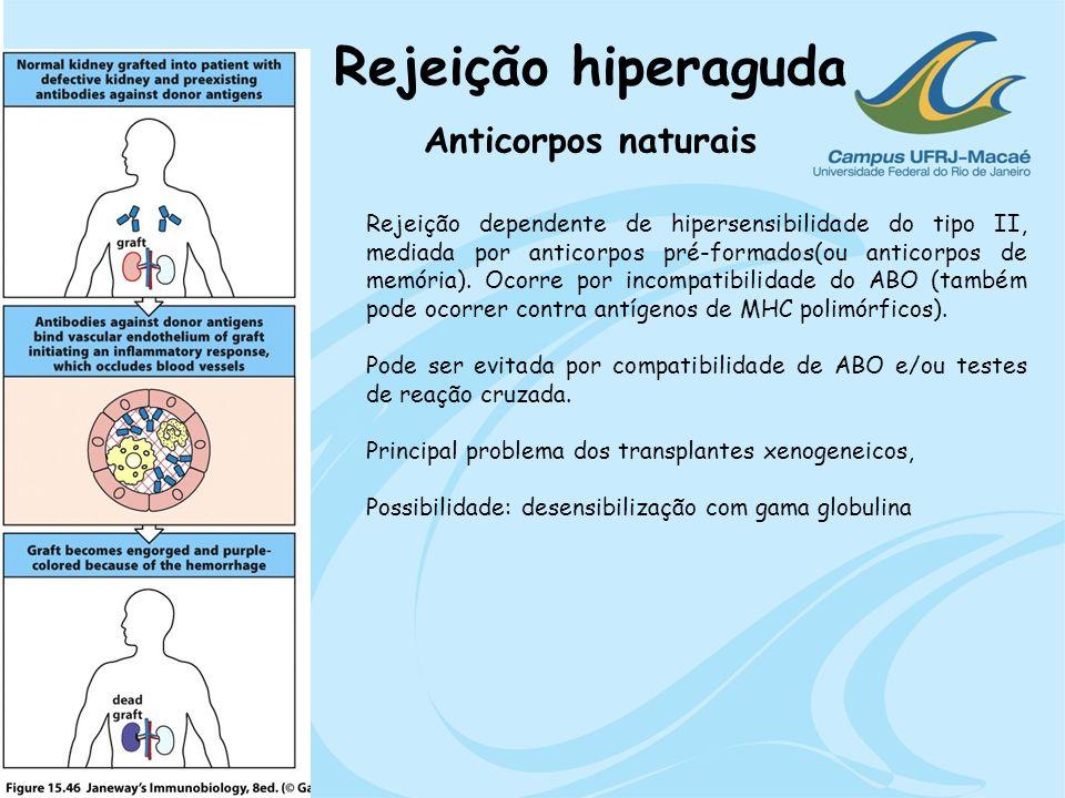 Rejeição hiperaguda Anticorpos naturais