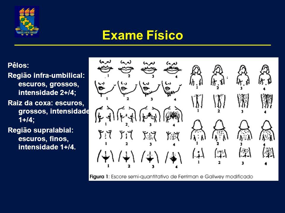 Exame Físico Pêlos: Região infra-umbilical: escuros, grossos, intensidade 2+/4; Raiz da coxa: escuros, grossos, intensidade 1+/4;