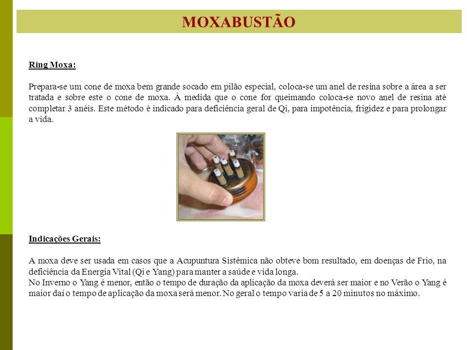 MOXABUSTÃO Ring Moxa: