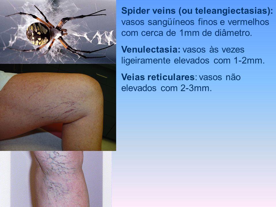 Spider veins (ou teleangiectasias): vasos sangüíneos finos e vermelhos com cerca de 1mm de diâmetro.