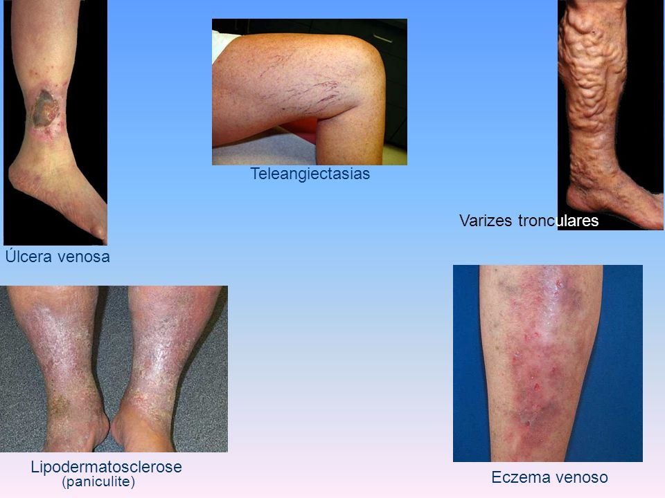 Teleangiectasias Varizes tronculares Úlcera venosa Lipodermatosclerose