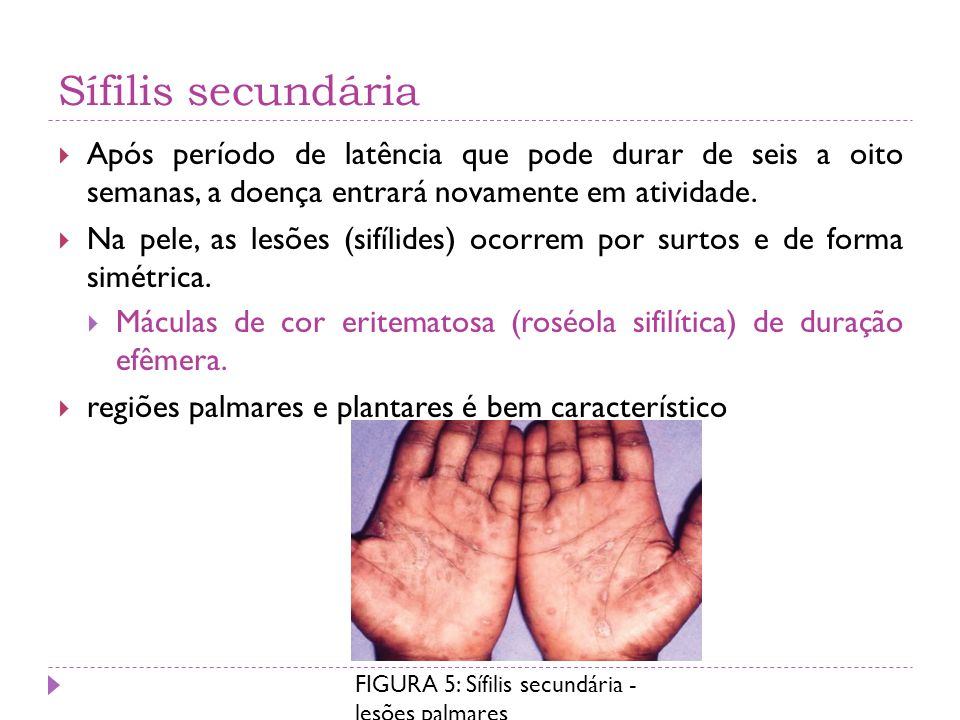 Sífilis secundária Após período de latência que pode durar de seis a oito semanas, a doença entrará novamente em atividade.