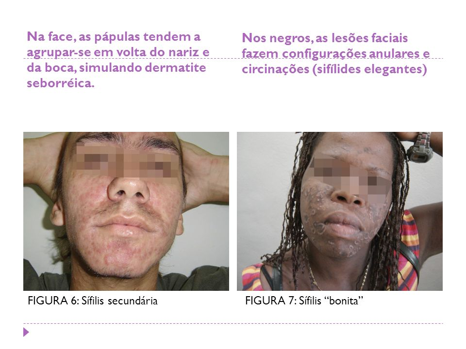 Nos negros, as lesões faciais fazem configurações anulares e circinações (sifílides elegantes)
