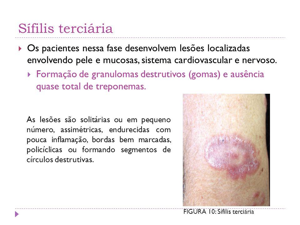 Sífilis terciária Os pacientes nessa fase desenvolvem lesões localizadas envolvendo pele e mucosas, sistema cardiovascular e nervoso.