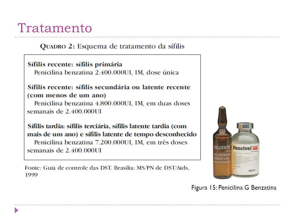 Tratamento Figura 15: Penicilina G Benzatina
