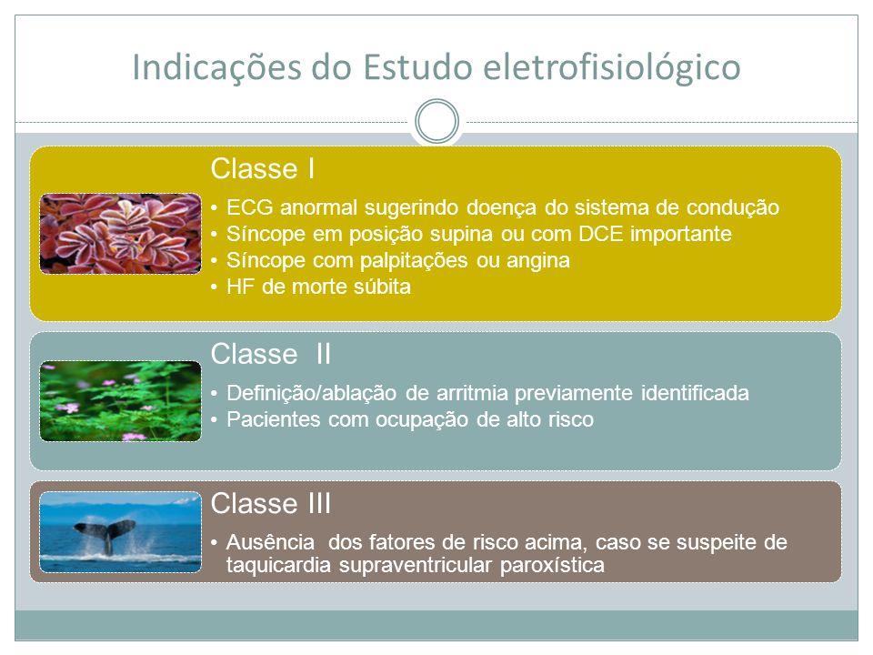 Indicações do Estudo eletrofisiológico