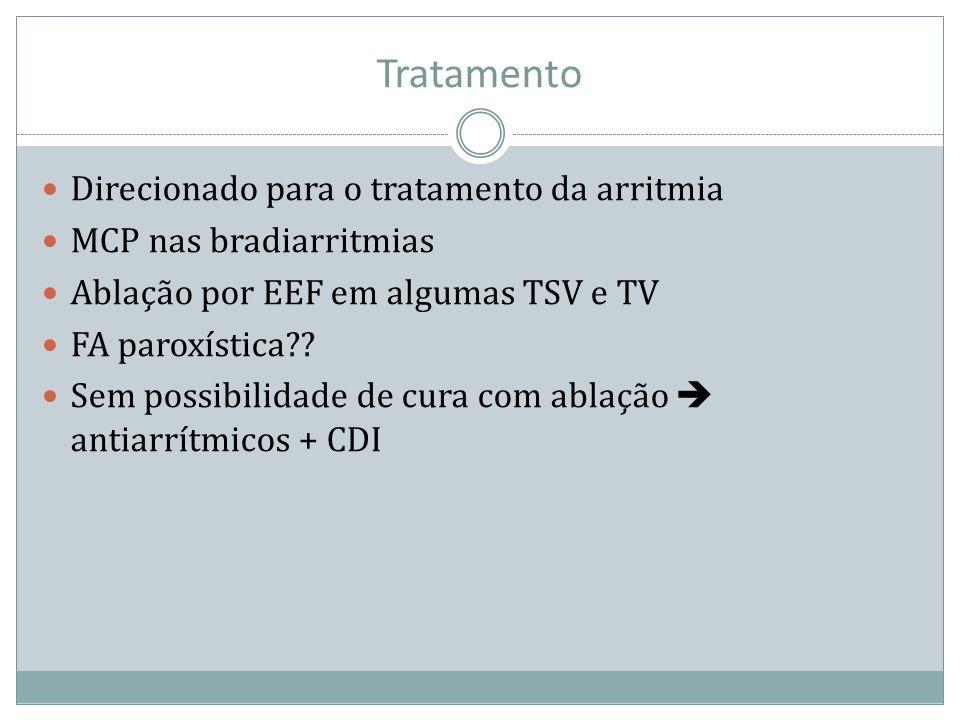 Tratamento Direcionado para o tratamento da arritmia