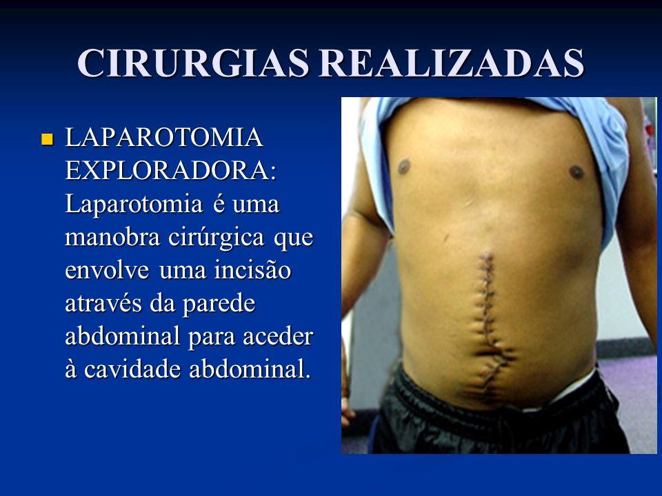 CIRURGIAS REALIZADAS